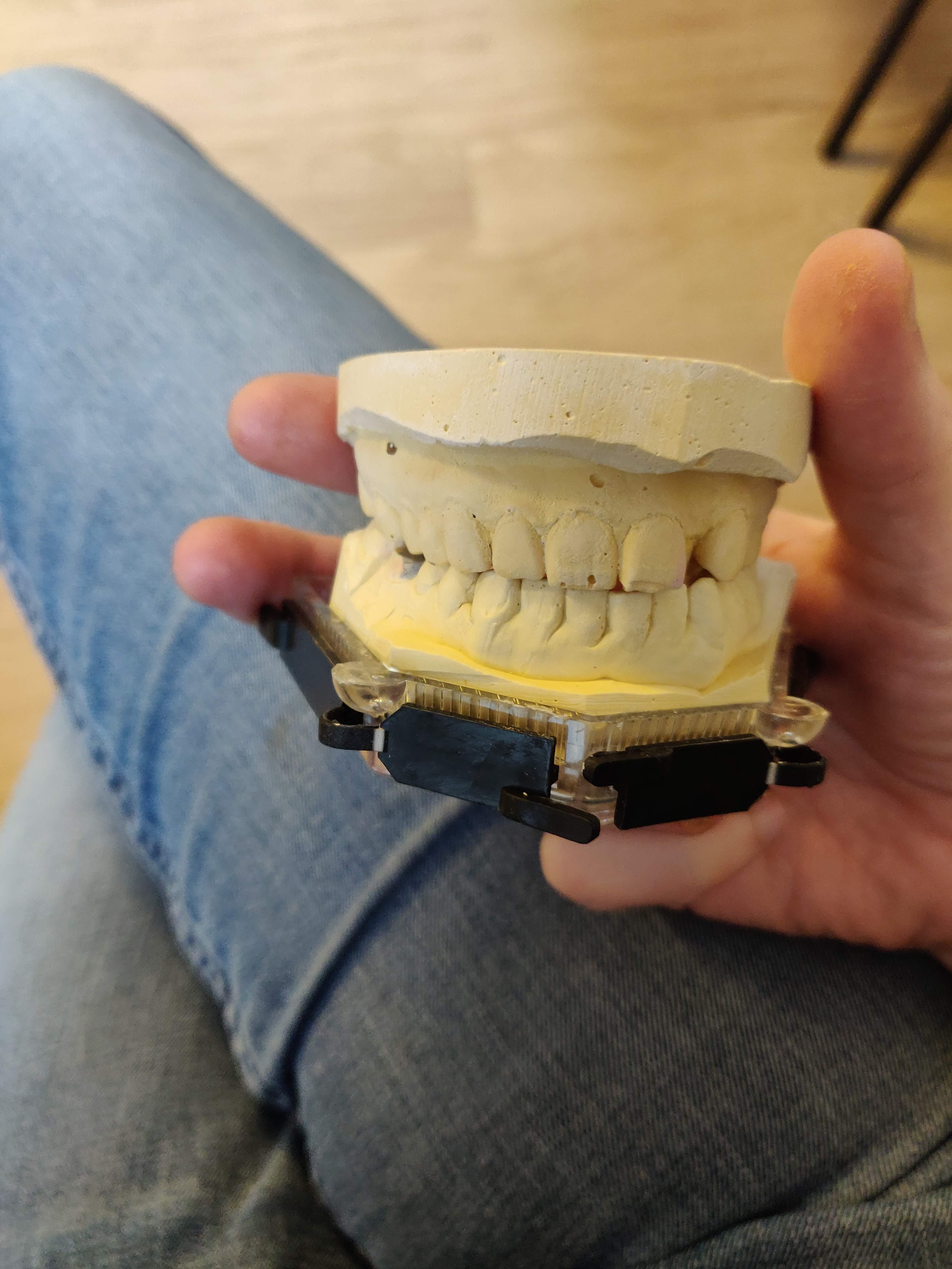 teeth_model